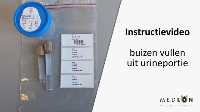 Instructievideo buizen vullen uit urineportie